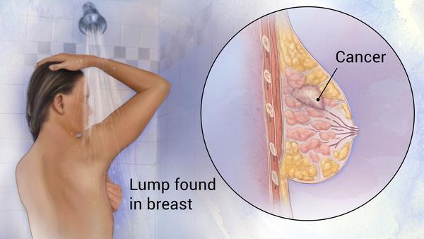 breast cancer dra martha castro tijuana baja california mexico usa