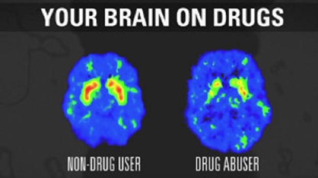 brain damage alcohol drugaddiction health dr martha castro mexico